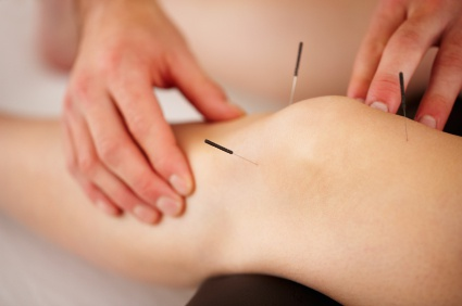 Hands on Health Care Dry Needling