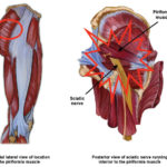Piriformis Syndrome: What a Pain in the Butt!