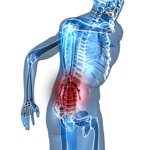 Sciatica: What it is and What to do